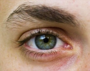 Treating Your Eye Condition with Specialized Surgery