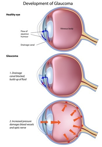 glaucoma treatment atlanta duluth georgia