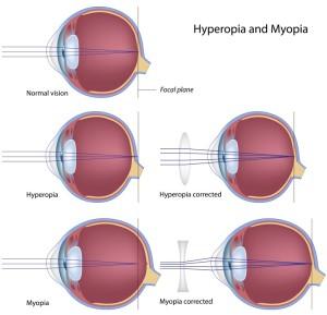 What Exactly Do Corrective Lenses Do