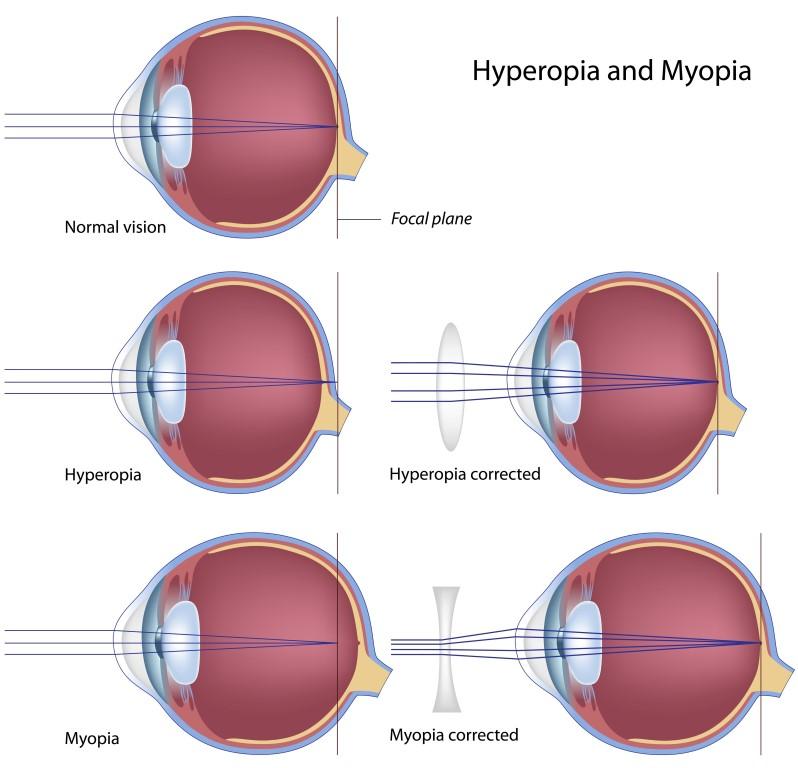 Corrective Lenses Glasses