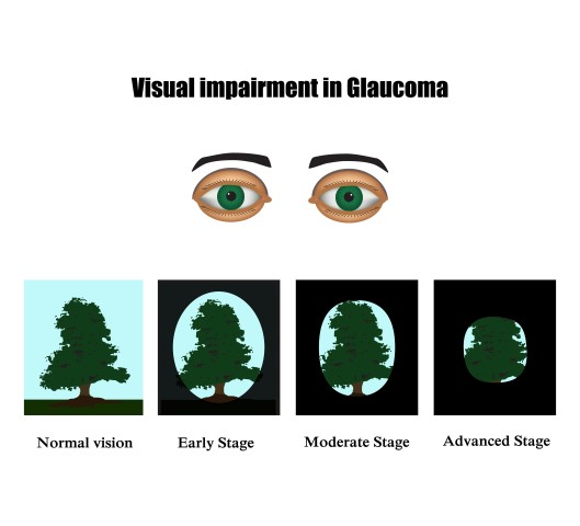 Getting the Facts about Glaucoma