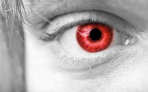 No Laughing Matter The Dangers of Novelty Contact Lenses