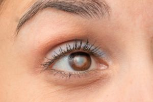 Frequently Asked Questions about Cataracts