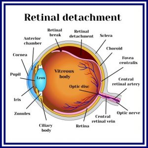 What is a Torn or Detached Retina